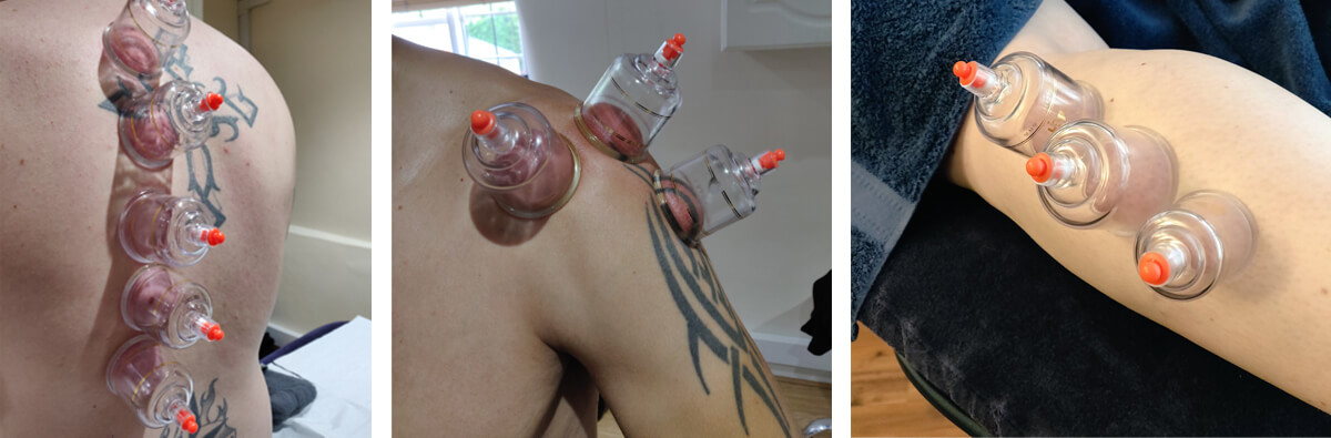 Cupping treatments